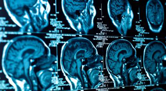 brain_scan02